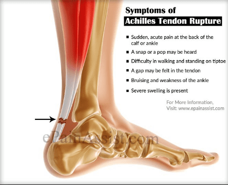 How to avoid Achilles Rupture - Allied